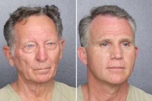 Men posed as feds to avoid wearing masks at Florida resort